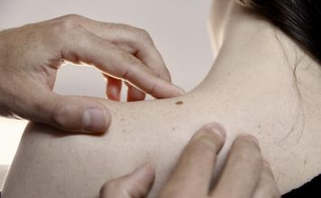 Medidas de prevencion del cáncer de piel